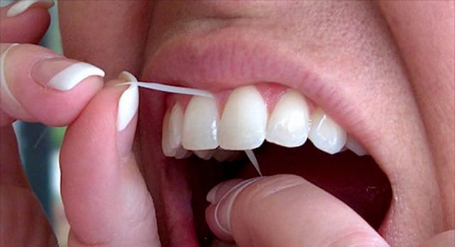 Is Blood Normal When Flossing? 9