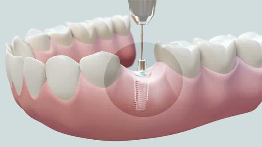Dental Implants 16