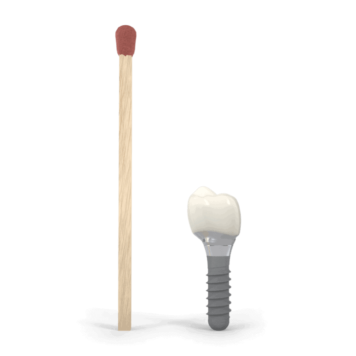 dental implant cape town