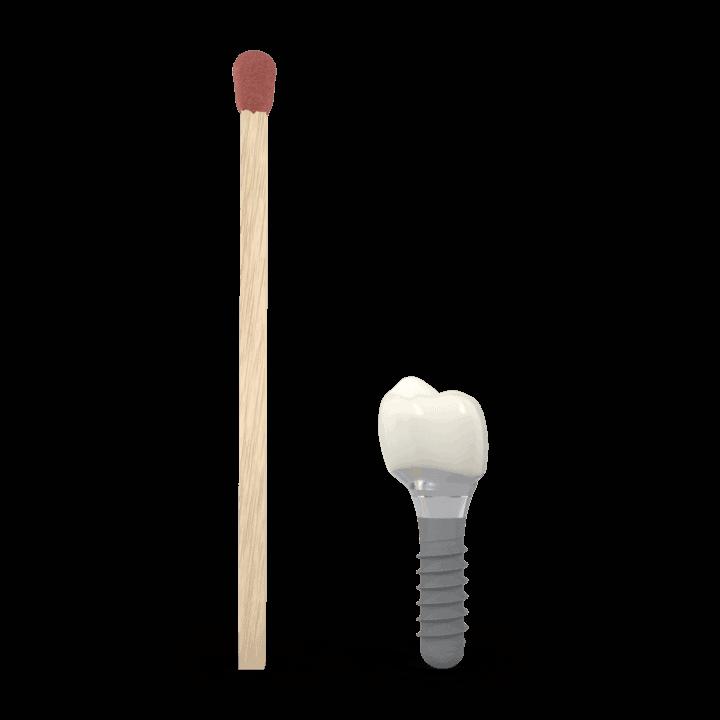 dental implant cape town