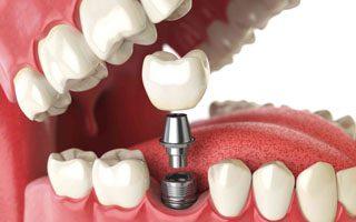 Dental Solutions 3