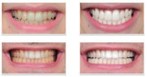 Zoom Teeth Whitening Cape Town 7