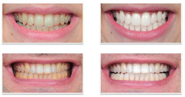 Teeth-Whitening-cape-town