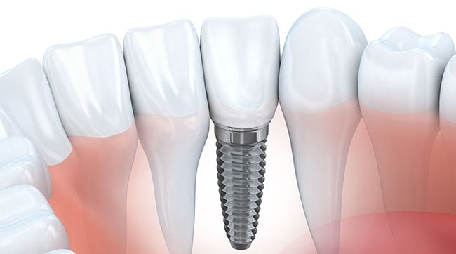 Dental Implants 14