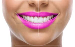 optismile-digital-smile-design-grid 3