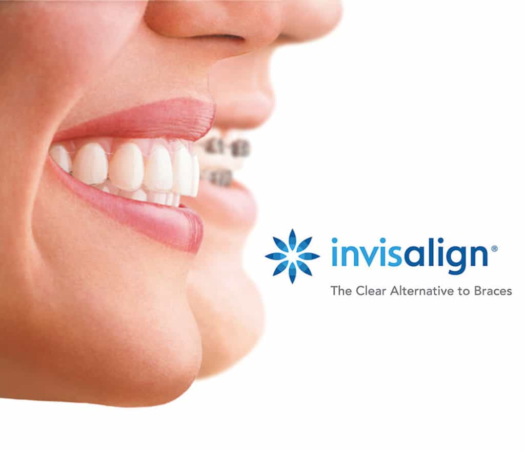Invisalign Clear Braces 2