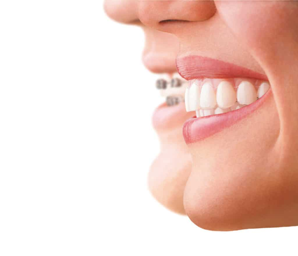 Invisalign Campaign - Landing Page Backup 2