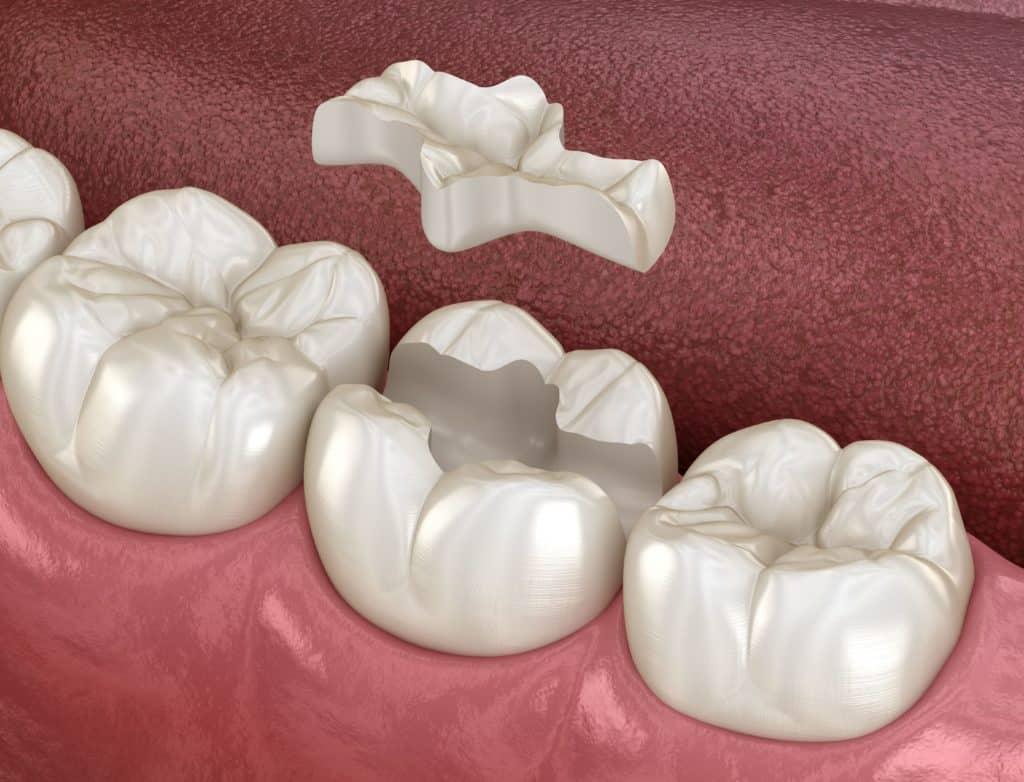 Dental Overlay