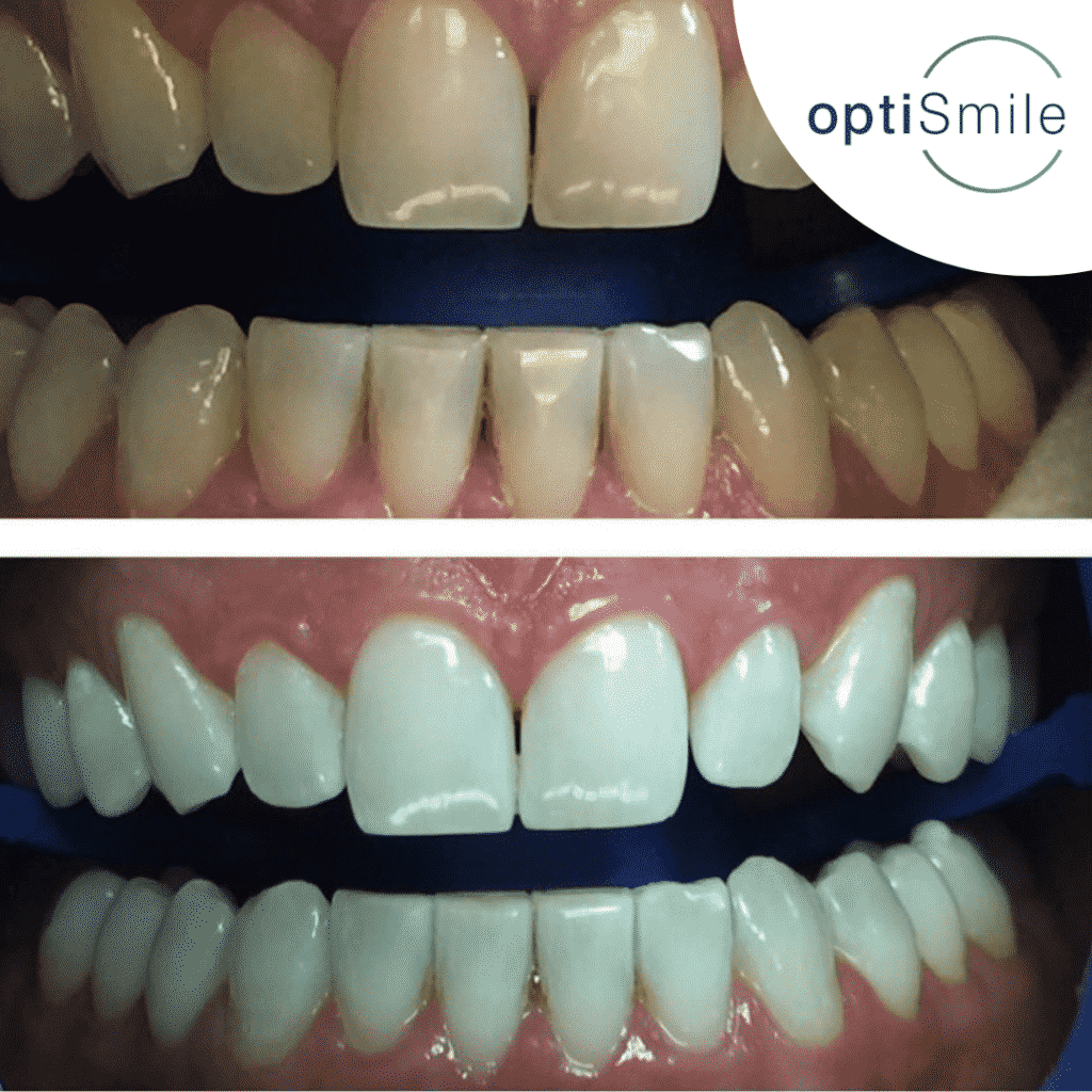 Optismile Teeth Whitening Results Patient 3