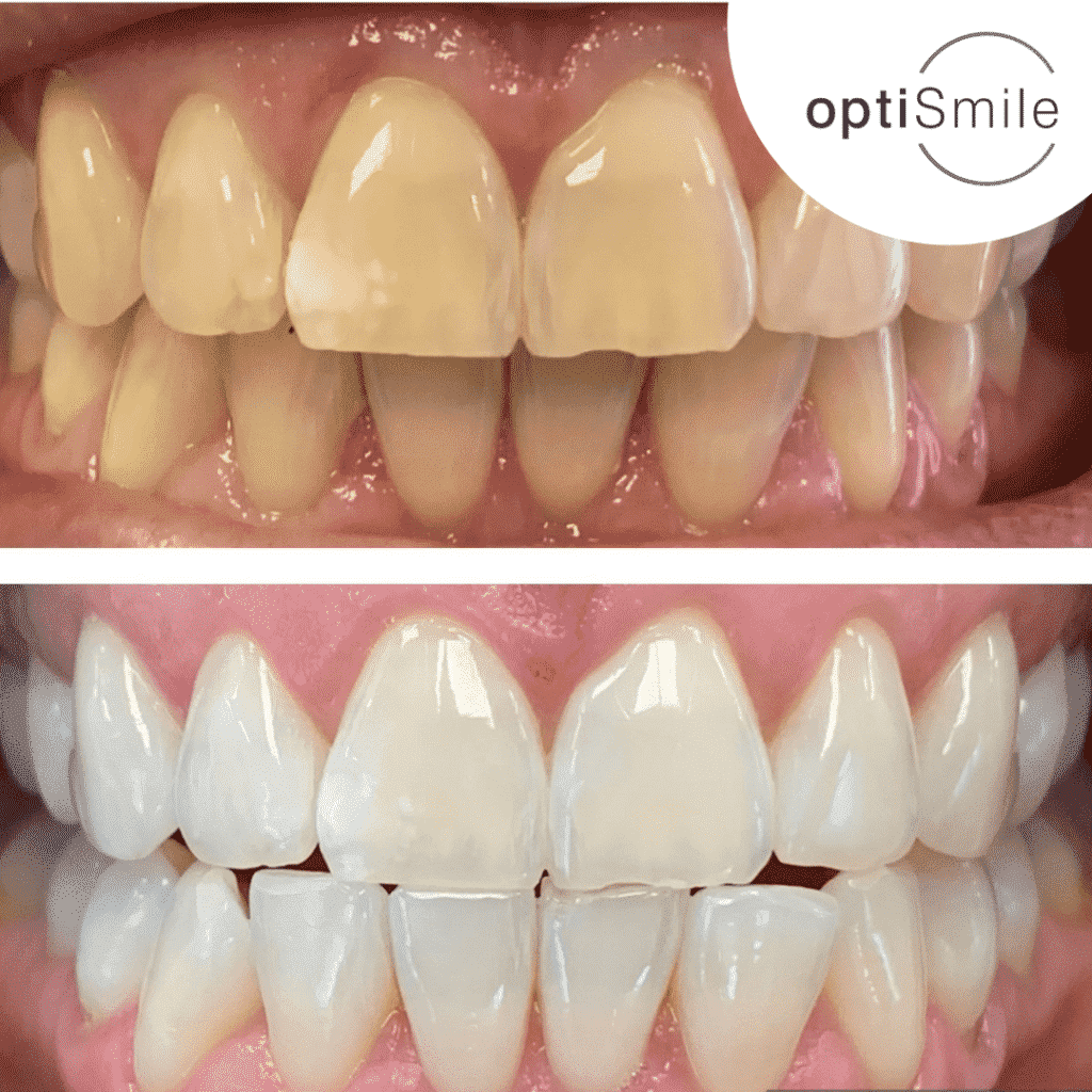 Optismile Teeth Whitening Results Patient 1