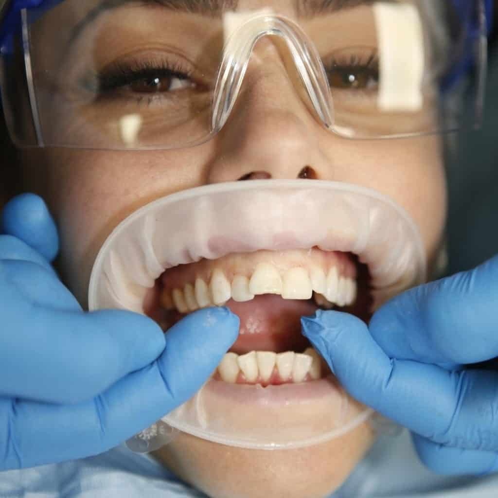Cosmetic Dentistry Sea Point 3